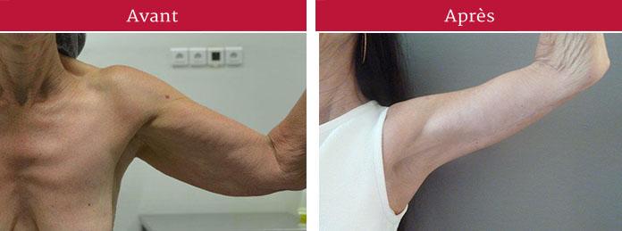 centre nantais de chirurgie plastique et esth tique lifting des bras. Black Bedroom Furniture Sets. Home Design Ideas