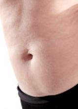 Photo-LIPOASPIRATION-(liposuccion)