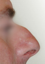 Photo-RHINOPLASTIE